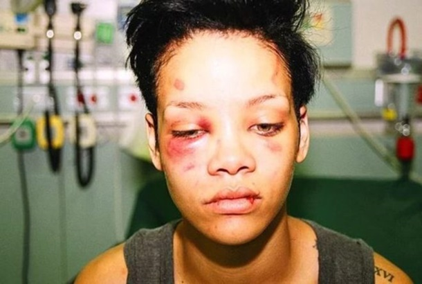 Chris Brown skandalları devam ediyor
